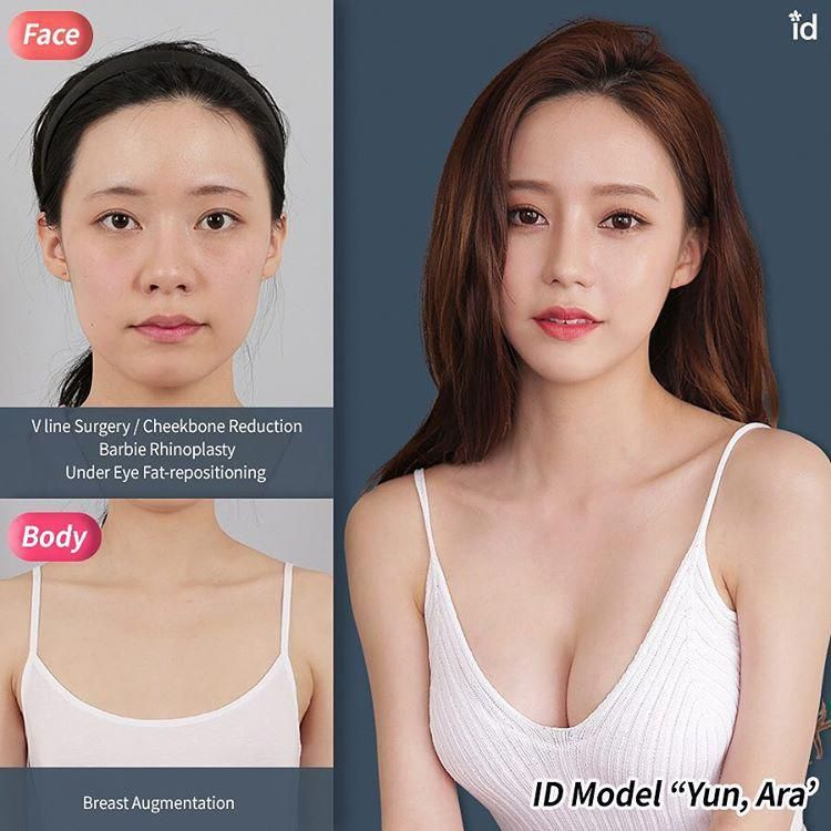 Id Plastic Surgery Hospital Idhospitalkorea Instagram Photos And Videos Search Tags Surgery Medici Plastic Surgery Cosmetic Surgery Korean Plastic Surgery