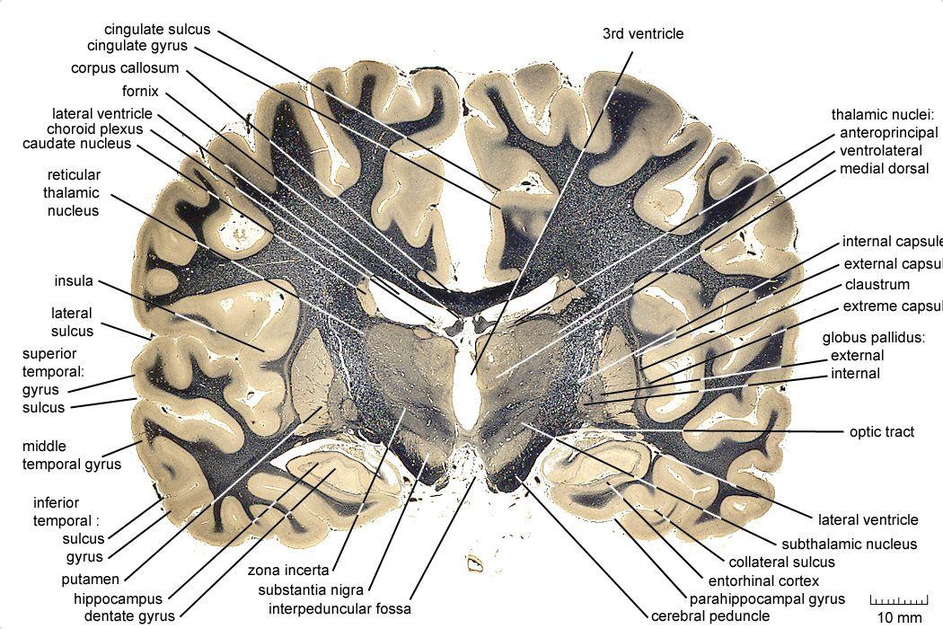 coronal section of human brain - Google Search   Anatomy   Pinterest ...