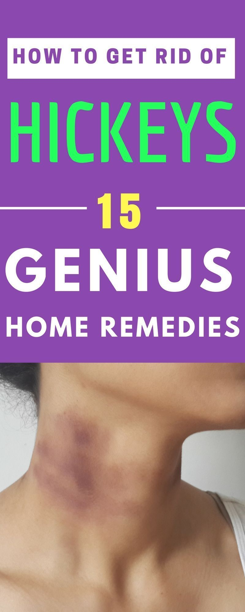 remedies to get rid of hickies