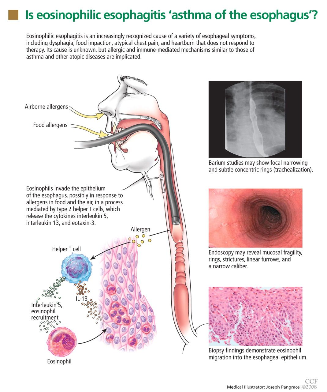 hight resolution of eosinophilic esophagitis an increasingly recognized cause of dysphagia food impaction and refractory heartburn cleveland clinic journal of medicine