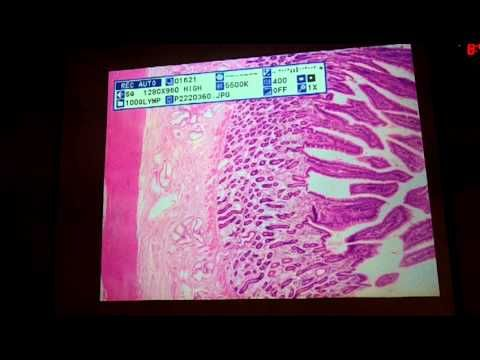 Digestive System Histology..very good explanation of the ...