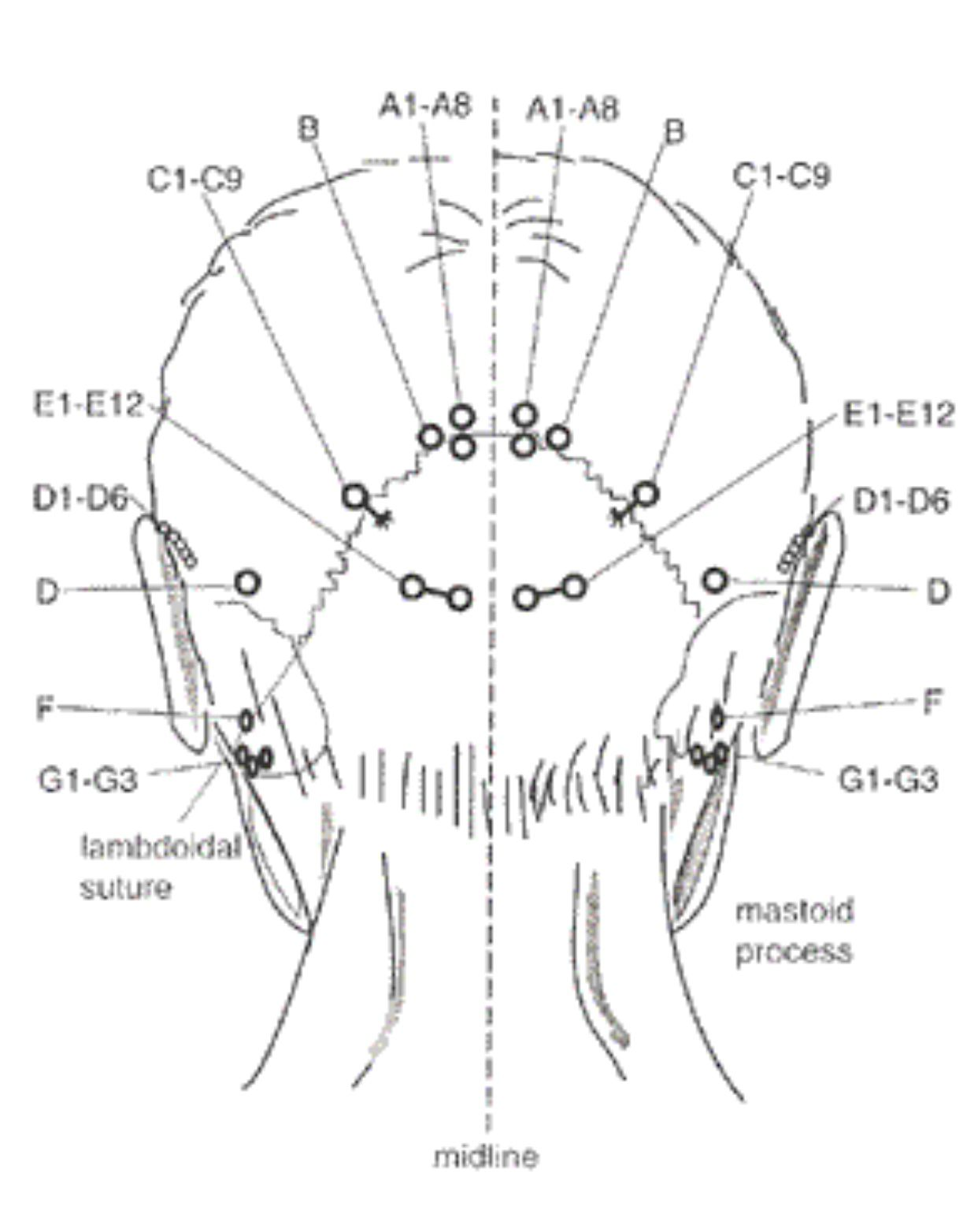 Pin By Allyson Chong On Health Acupuncture Acupoint