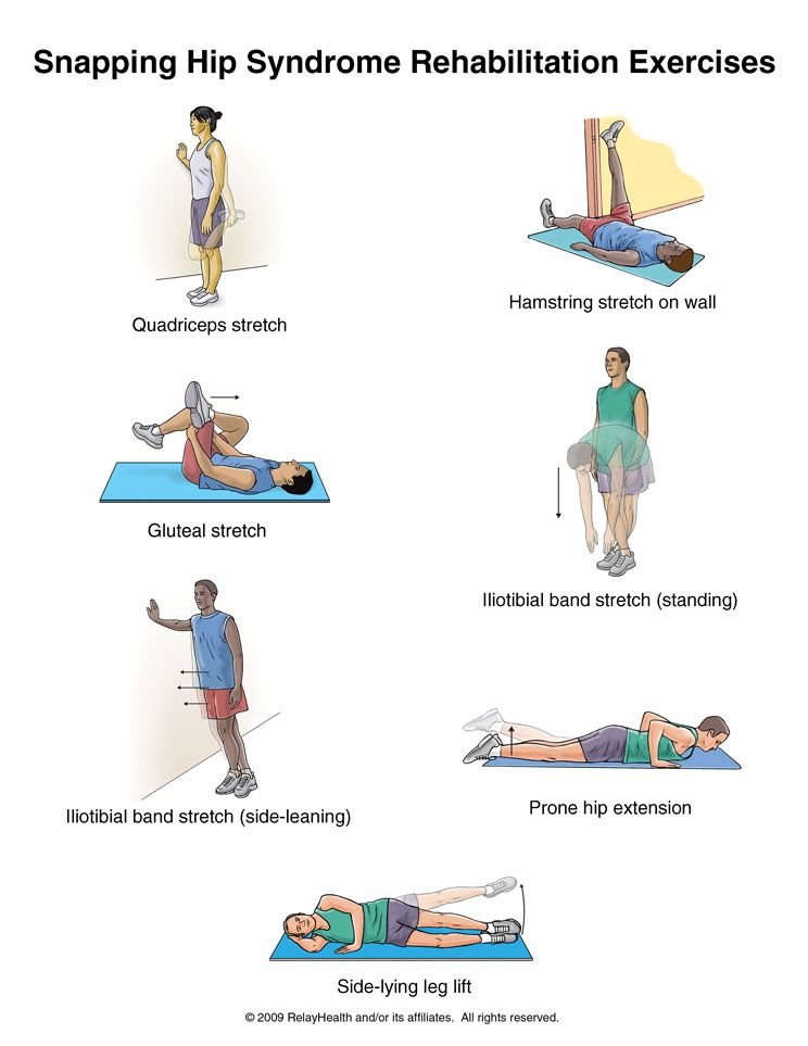 Summit Medical Group Snapping Hip Syndrome Exercises Health
