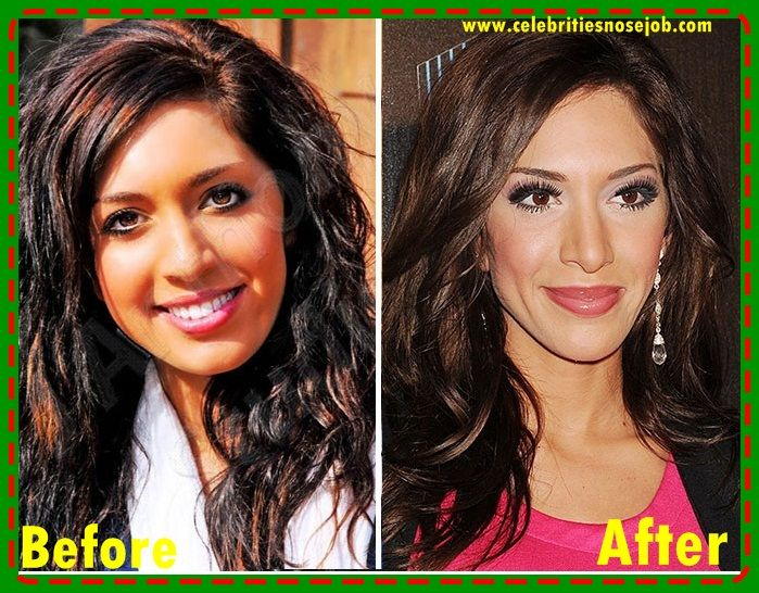 Pin by Anna Jenner on Celebrities Plastic Surgery Before