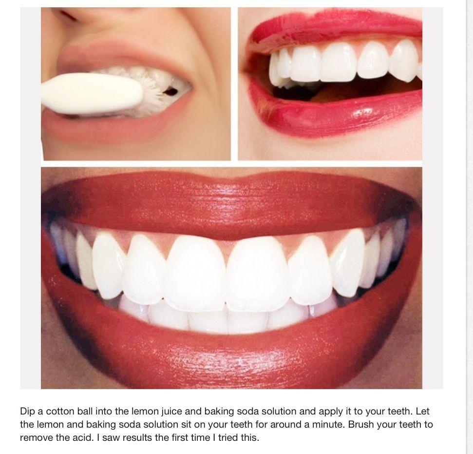 Teeth Whitening Fix Me Up Pinterest