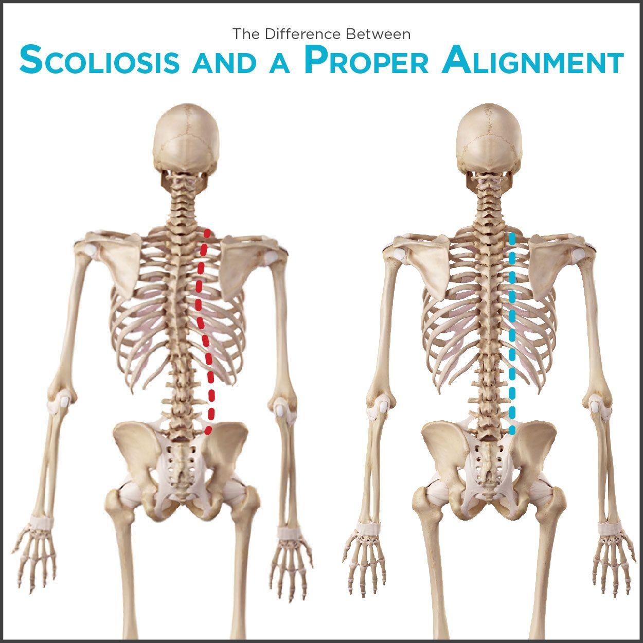 spondylolisthesis pain standing