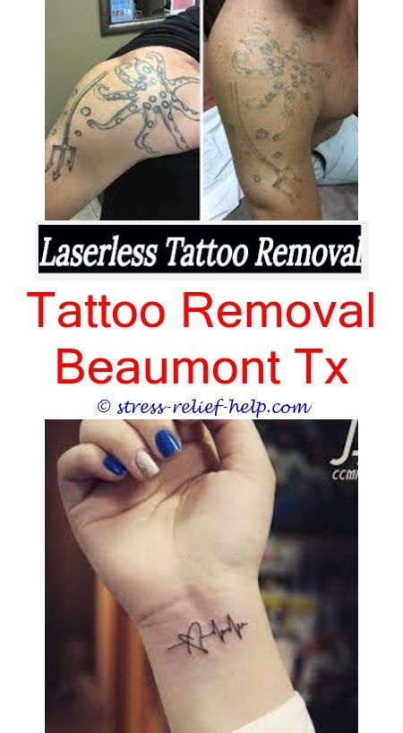 Can you get a tattoo removed and redone.Tattoo removal ...