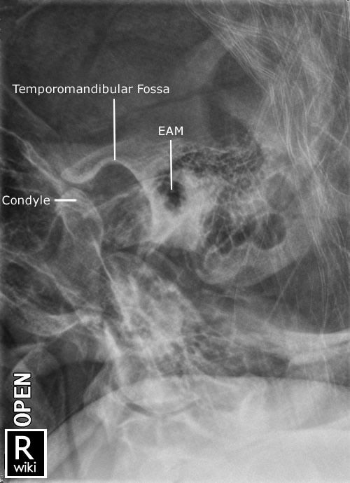 Pin By Jeremy Enfinger On Radiographic Anatomy Radiology Imaging