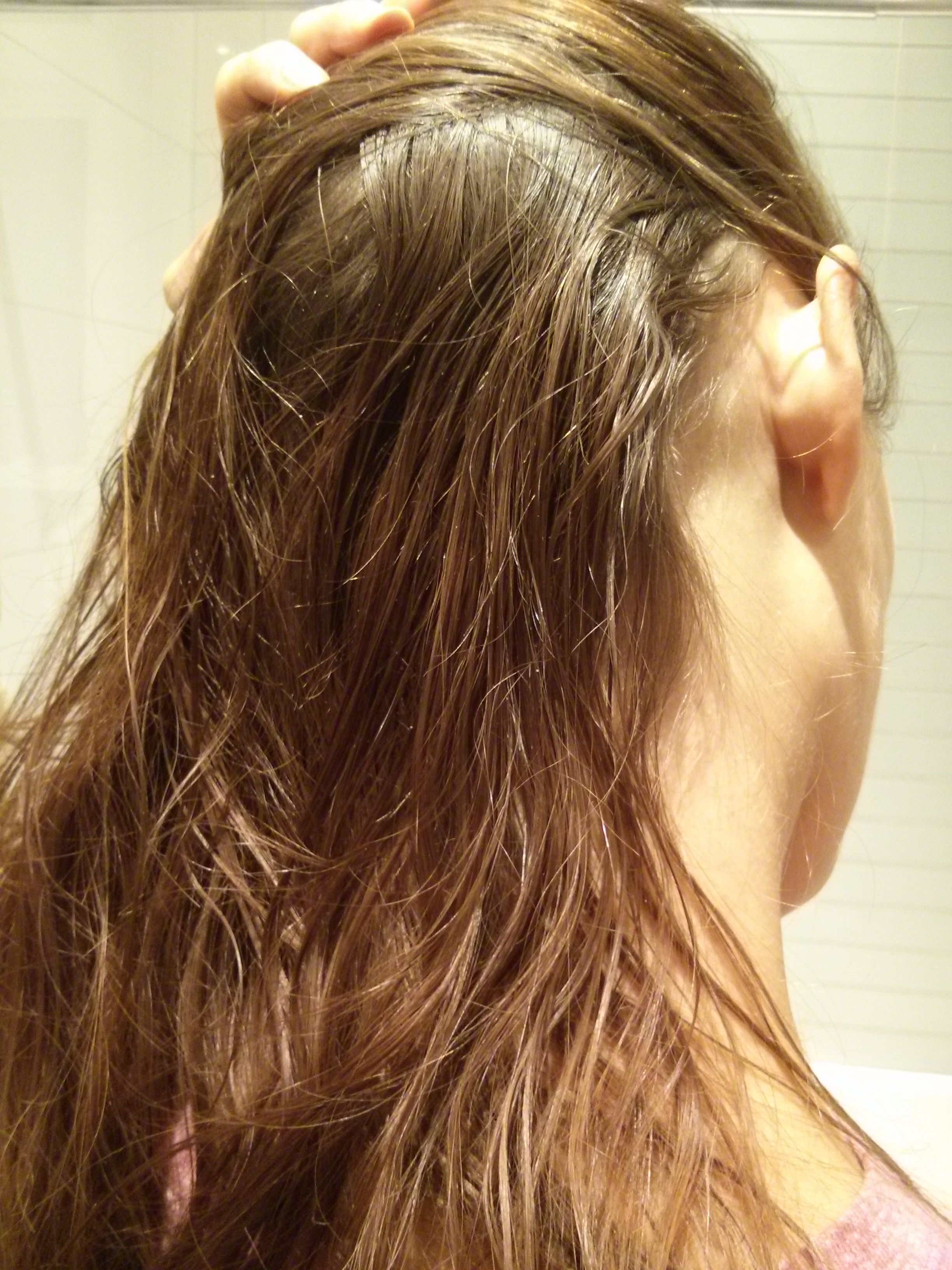 Waxy Greasy Hair After Shower A Surprising Form Of Dermatitis Greasy Hair Hairstyles Greasy Hair Remedies Hair