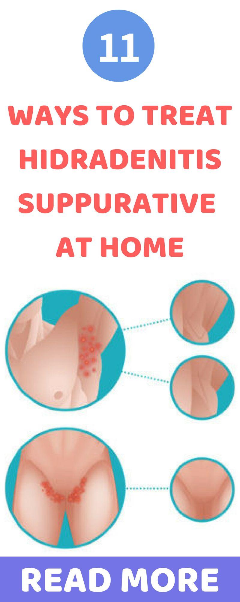 11 Easy And Simple Hidradenitis Suppurativa Natural Treatment