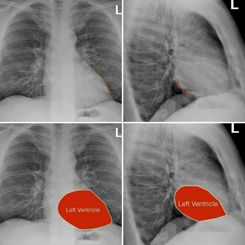 Left ventricle of the heart chest xray anatomy | Medical | Pinterest ...