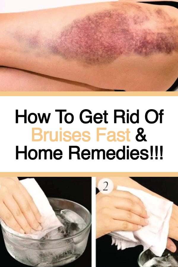 How To Get Rid Of Bruises On Face Overnight