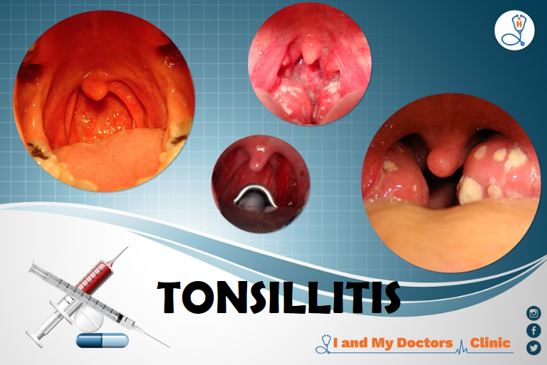 Tonsils are the two lymph nodes located on each side of