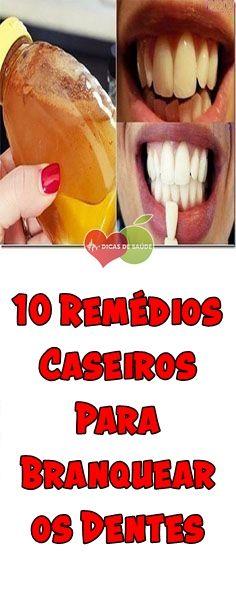 Os 10 Remedios Caseiros Para Branquear Os Dentes Receitas Caseiras