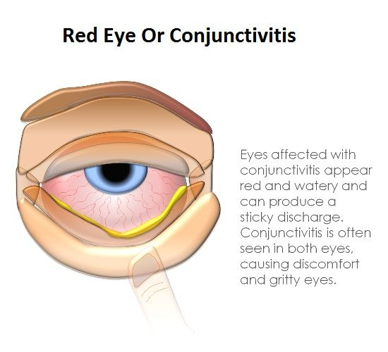Allergic Conjunctivitis Vs Bacterial Pictures To Pin On: Conjunctivitis, Also Known As Pink Eye, Is An Inflammation