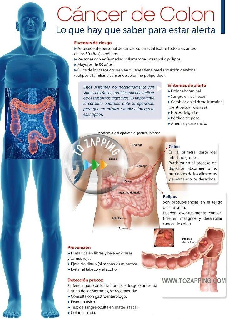 La Dieta Para Prevenir El Riesgo De Cáncer De Colon - Tozapping.com ...