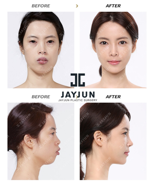 korean face contouring makeup korea facial contouring