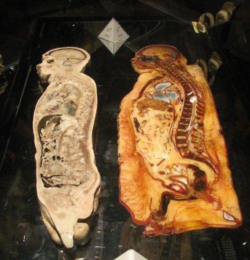 Secciones transversales humanas que muestran a una persona obesa en ...