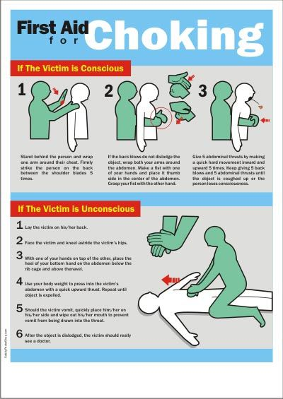 first aid for choking safety posters pinterest first aid Choking First Aid Sweep first aid for choking