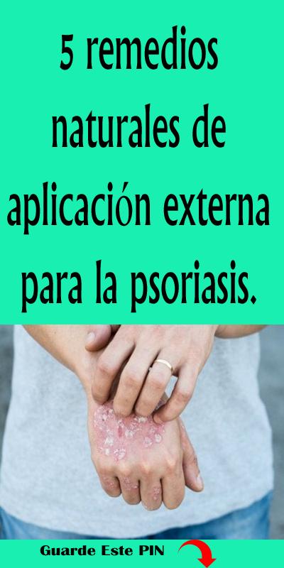 5 Remedios Naturales De Aplicación Externa Para La Psoriasis Remedios Remedios Naturales Psoriasis