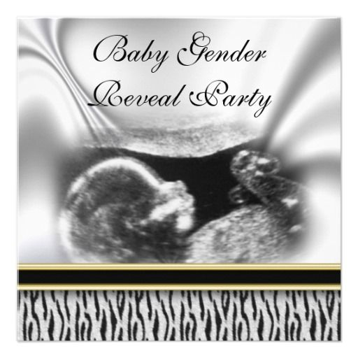 Ultrasound Baby Gender Reveal Party Invitation Zazzle Com Gender Reveal Party Invitations Baby Gender Reveal Party Gender Reveal