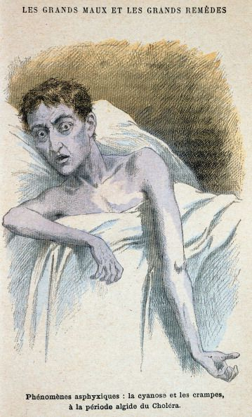 Patient in typical cholera attitude From French medical book published c1890