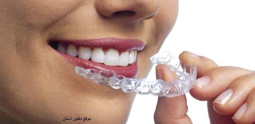 أهم الأضرار الناتجة عن تقويم الأسنان Dental Braces Invisalign Dental Implants Cost