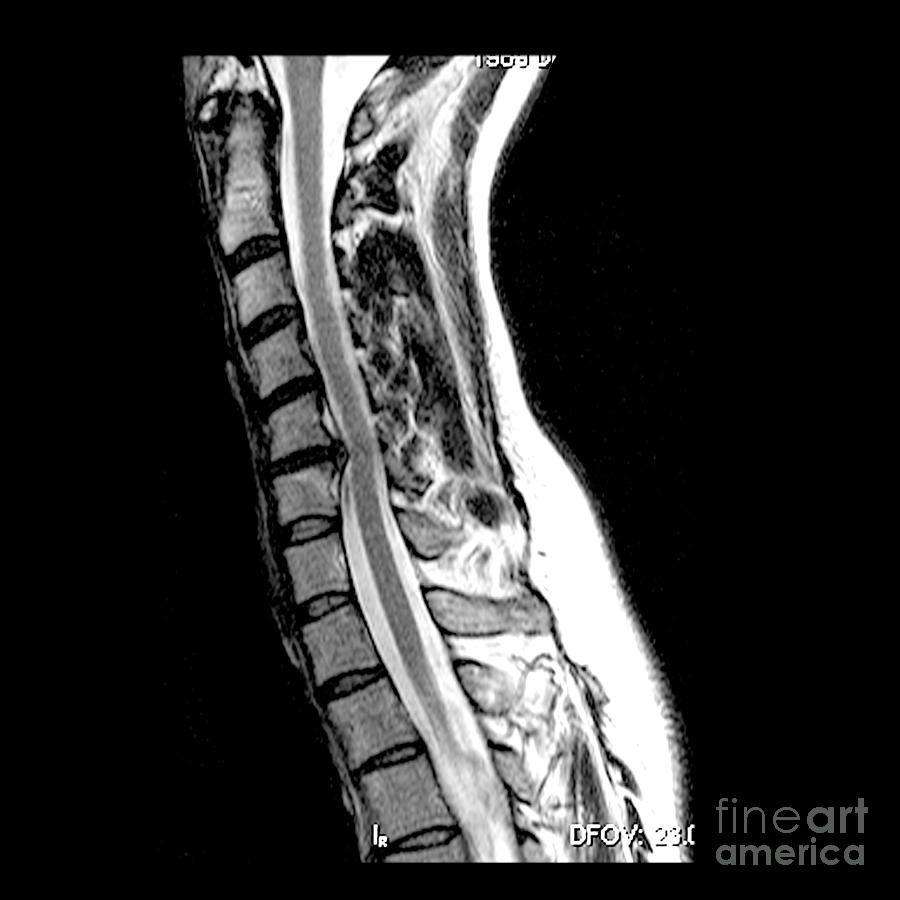 herniated disc in cervical spine medical body scans mri