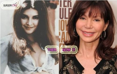 Celebrity Victoria Principal Plastic Surgery Before After