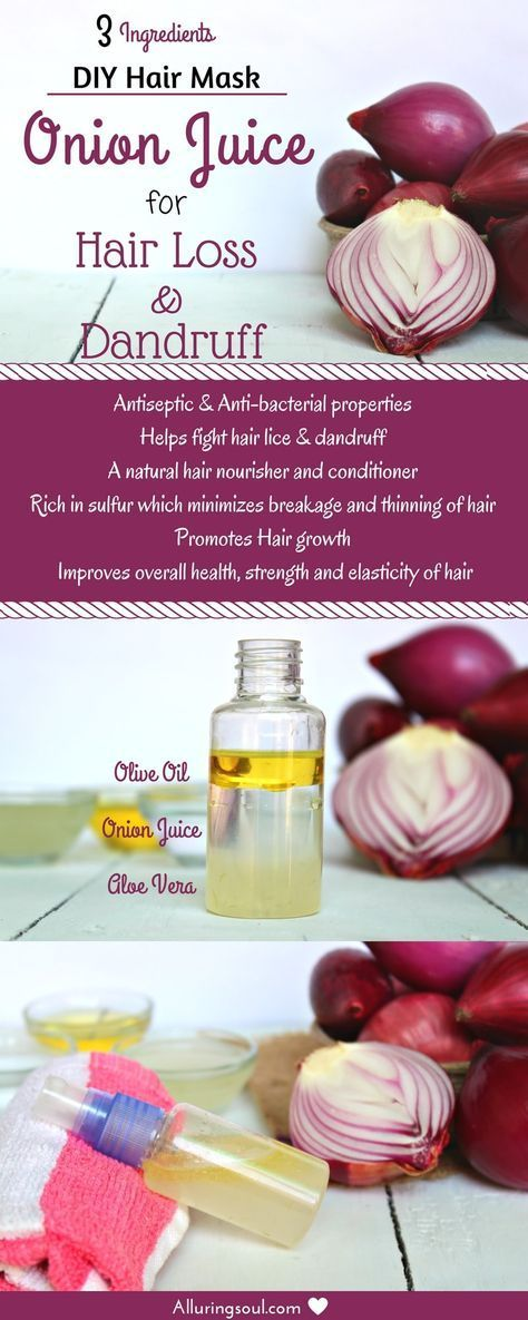 Onion Juice for hair loss and dandruff is the oldest remedy that not only strengthens your hair root...