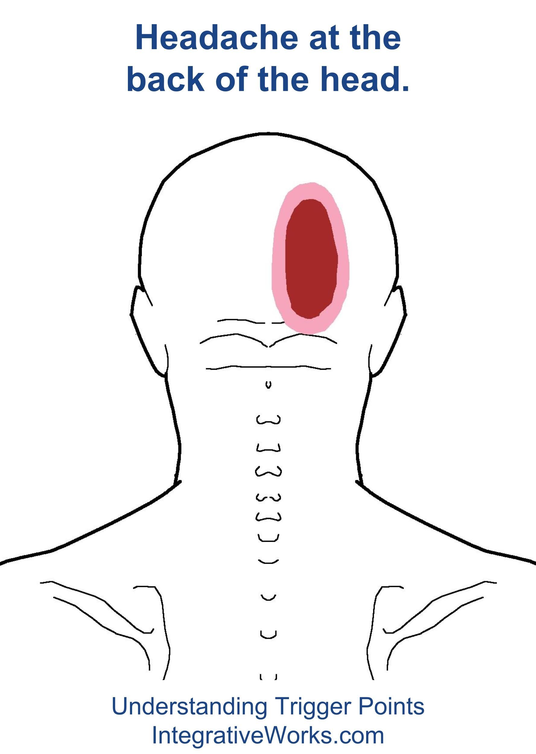 Pain in back of head after migraine