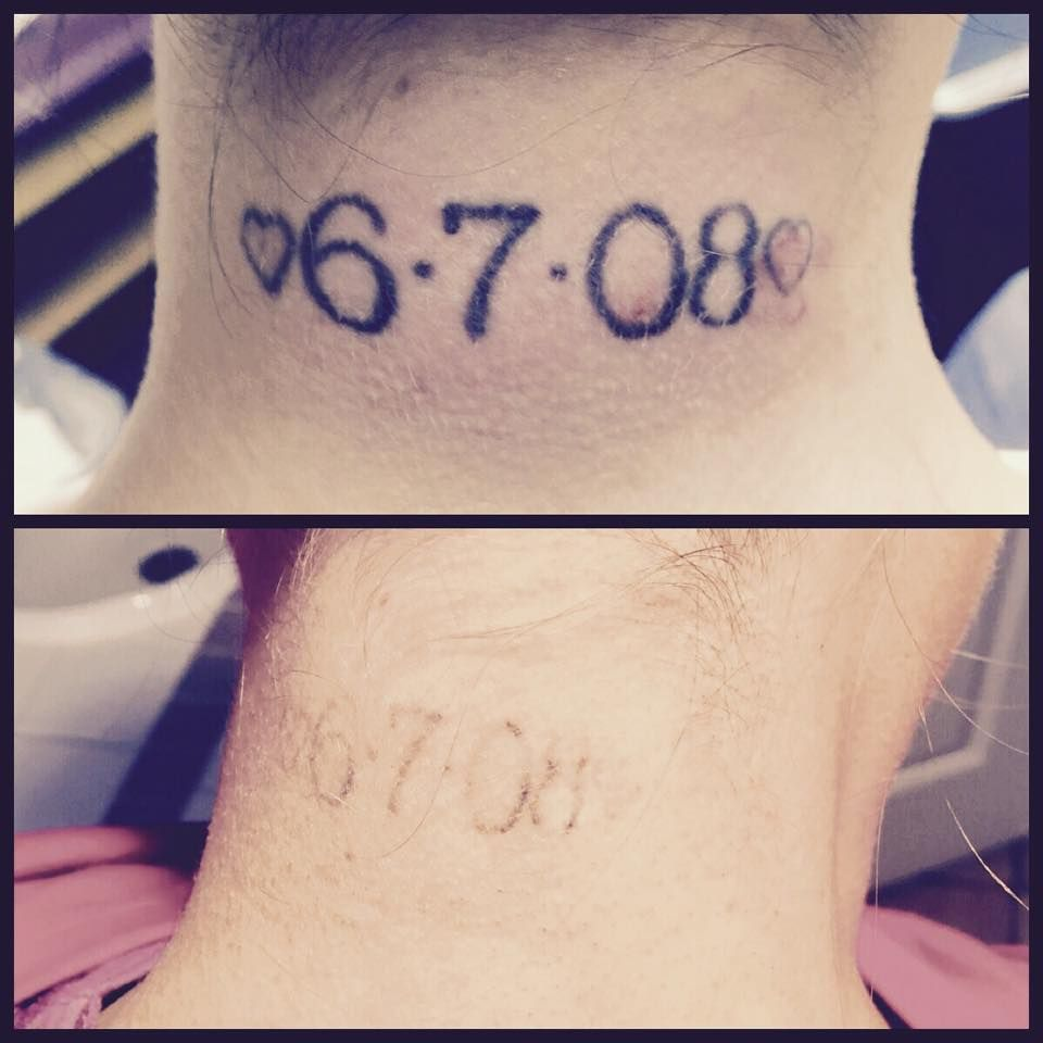 Tattoo Removal Quotes: Before/After Just Three Sessions With Our Pico Technology