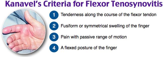 Kanavel's Criteria for Flexor Tenosynovitis
