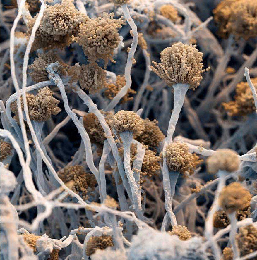 Плесень под микроскопом | Электронный микроскоп, Грибы ...