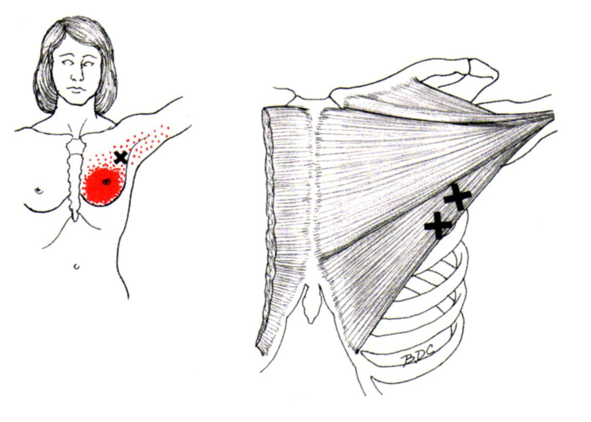 Pectoralis Major The Trigger Point Amp Referred Pain Guide