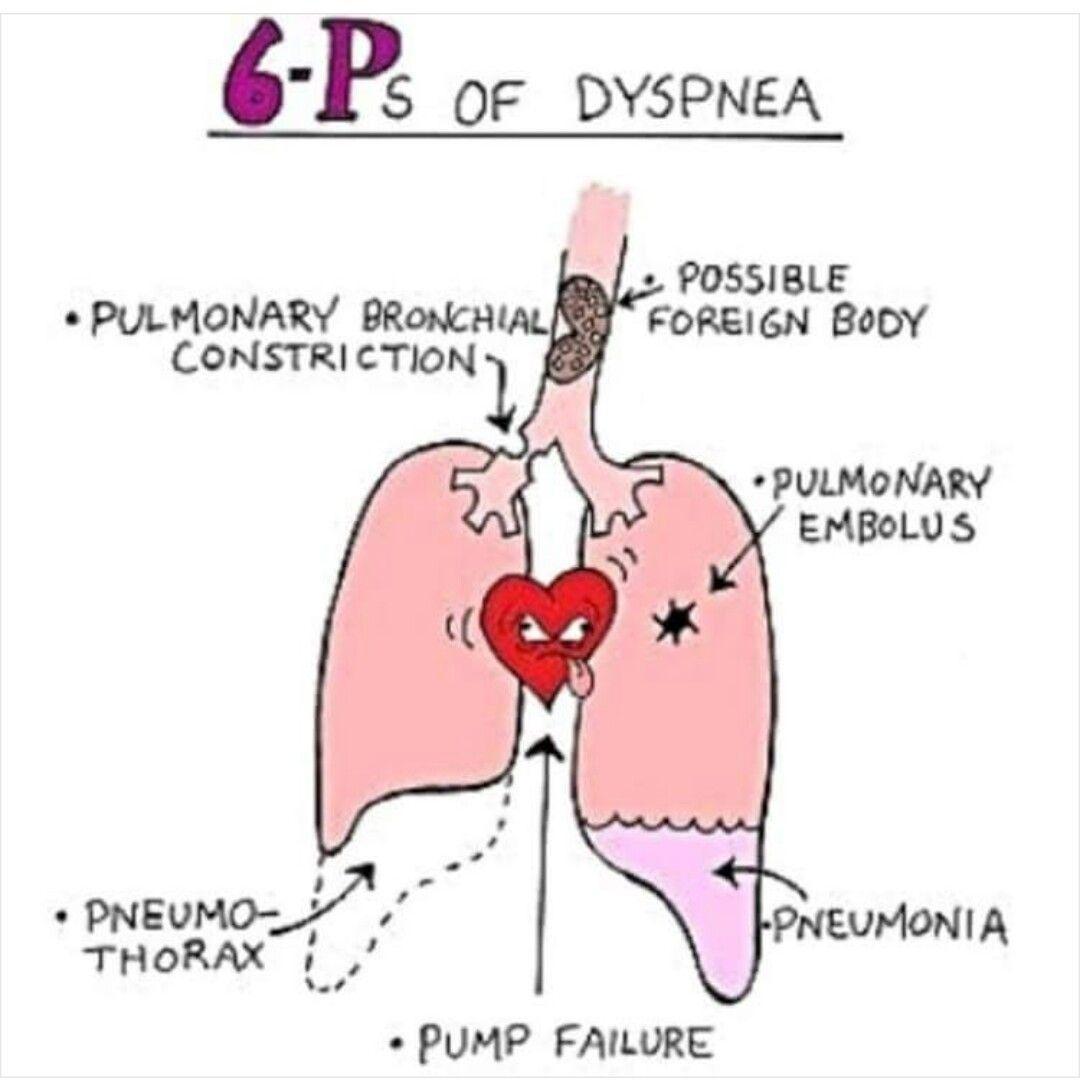 6 P S Of Dyspnea Mnemonic