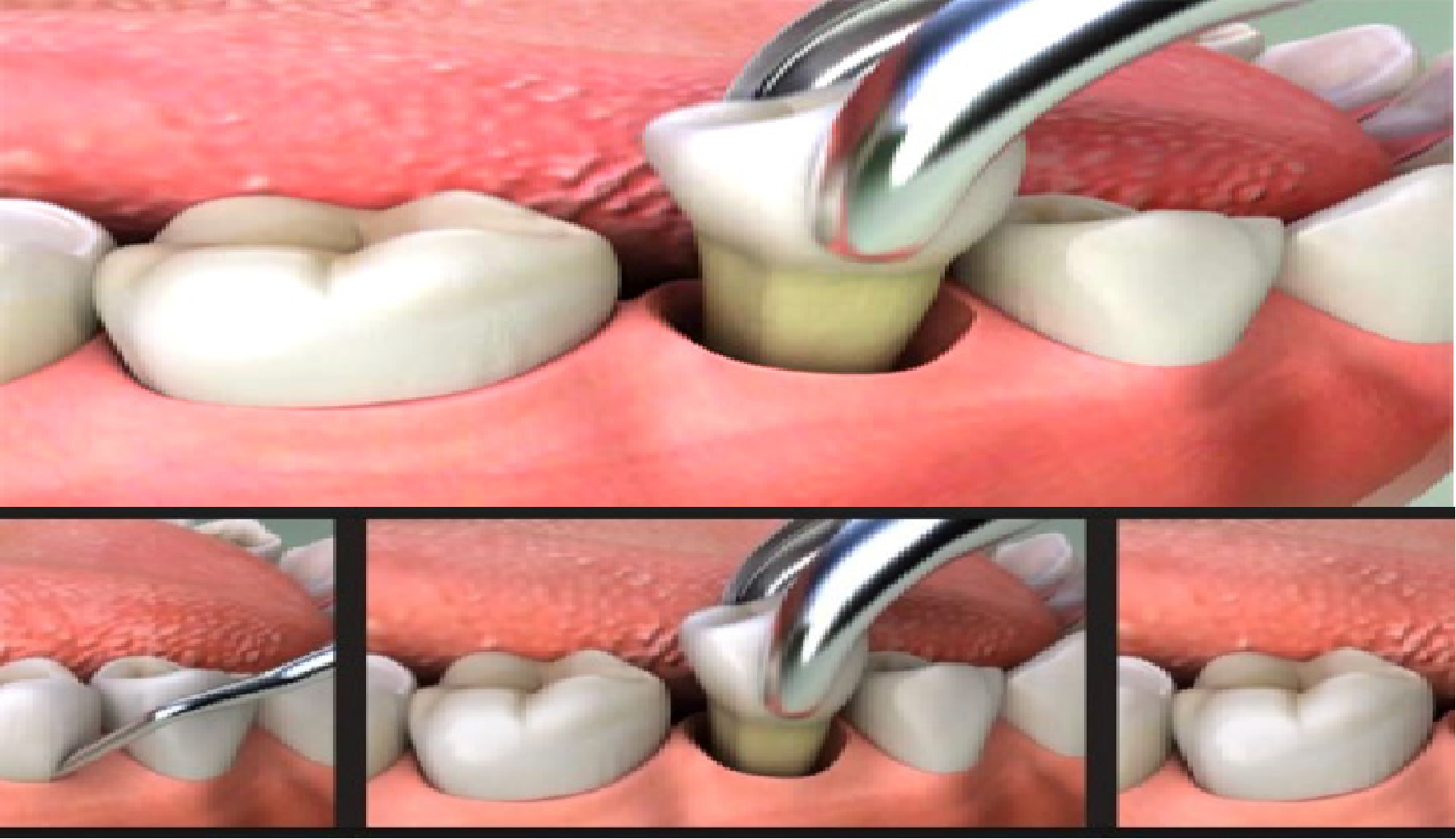 Impacted Wisdom Tooth Surgery Dental Extraction Tooth Extraction Care Dental Hospital