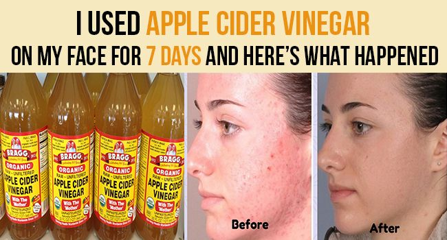I Used Apple Cider Vinegar On My Face For 7 Days And Here's What Happened - Remedies Lore -   13 skin care Blackheads apple cider vinegar ideas