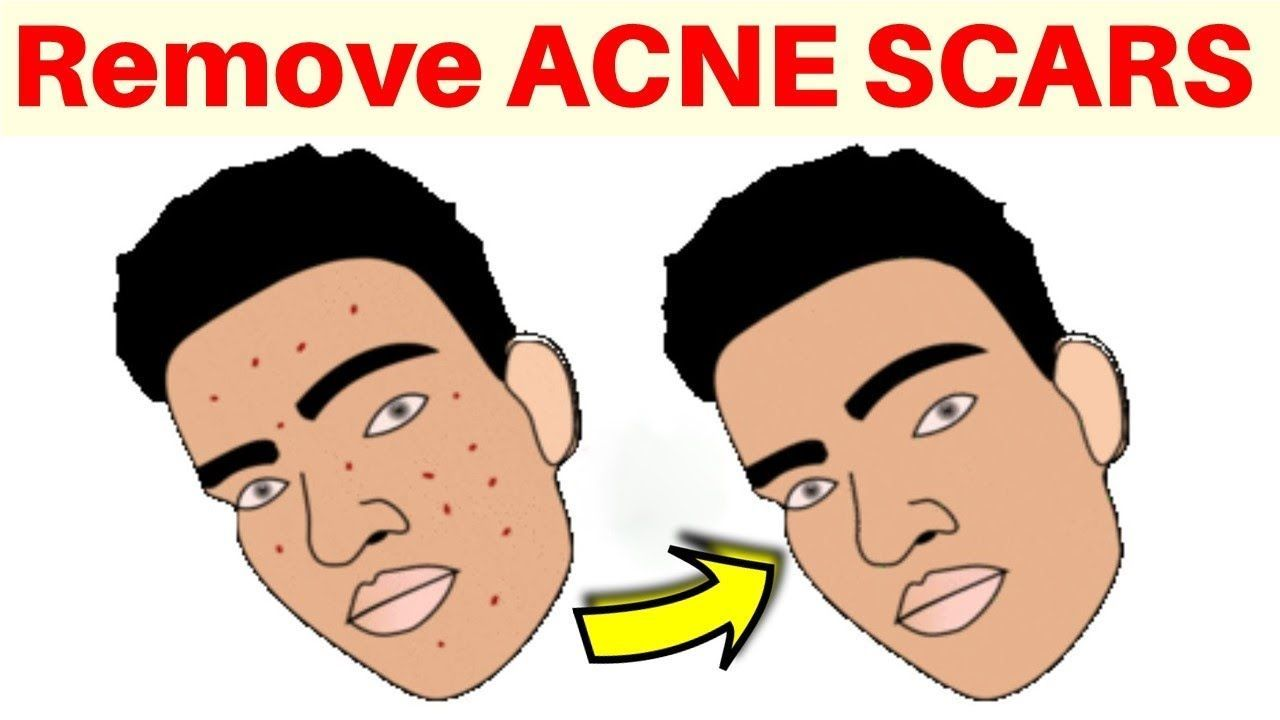 Pin On Get Rid Of Acne