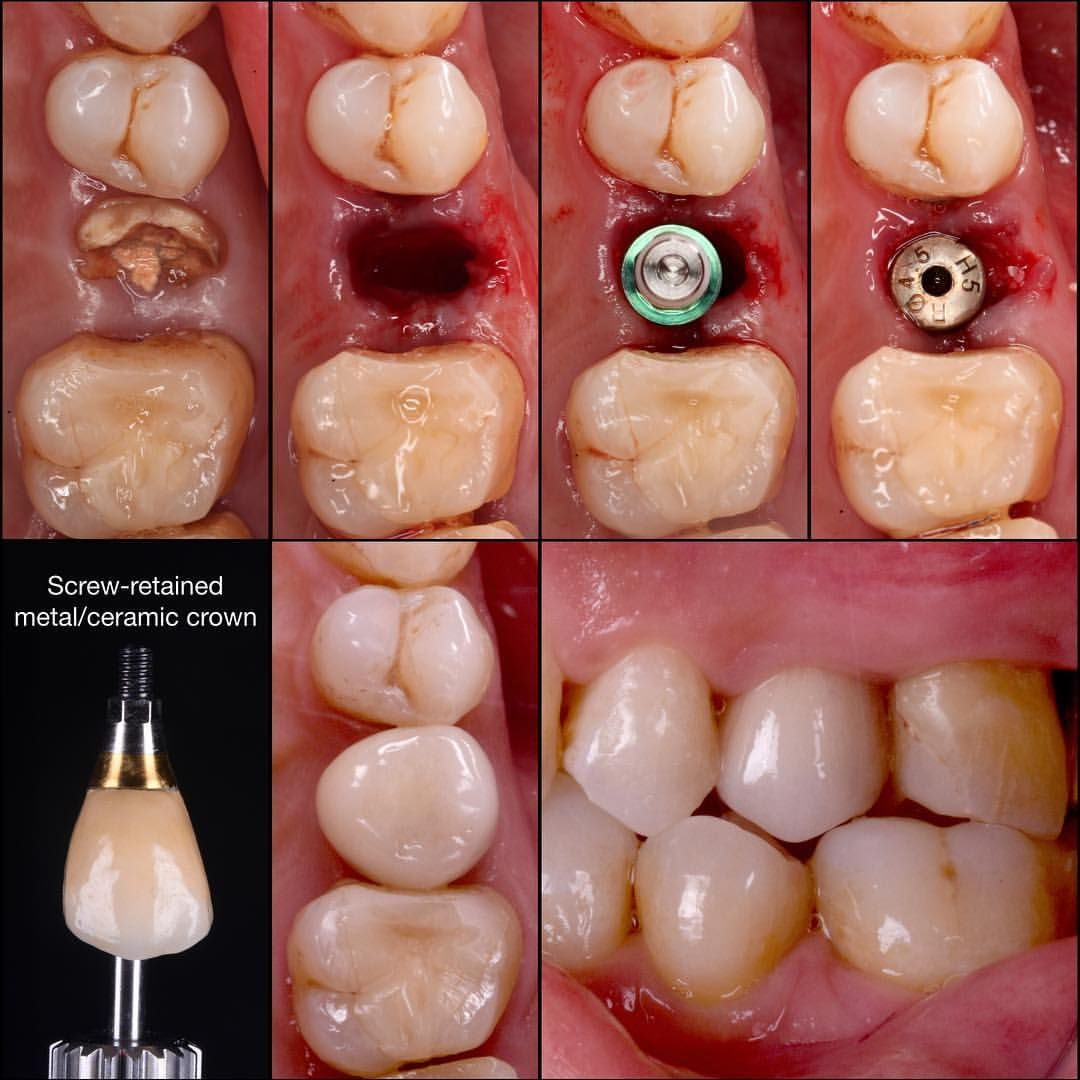 Immediat Implant Placement After The Extraction Of Hopeless Second Premolar Screw Retained Metal Dental Reconstruction Dental Aesthetics Dental Treatment