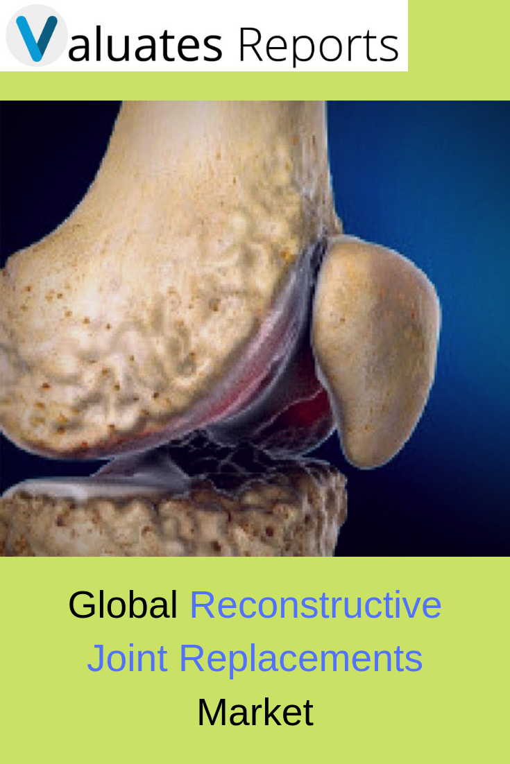Global Reconstructive Joint Replacements Market Report