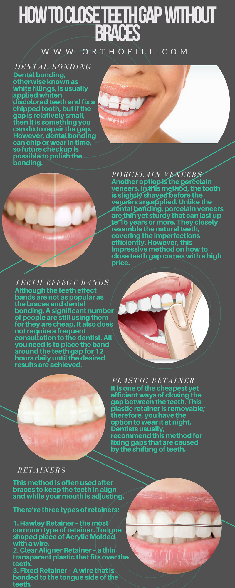 How To Close Teeth Gap Without Braces teethgap