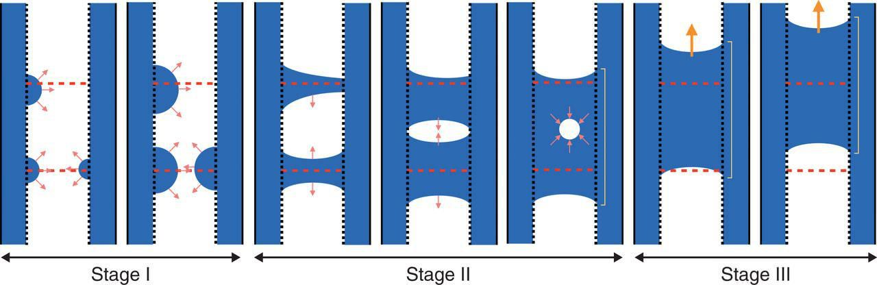 The Temporal Dynamics Of Xylem Refilling And Recovery From