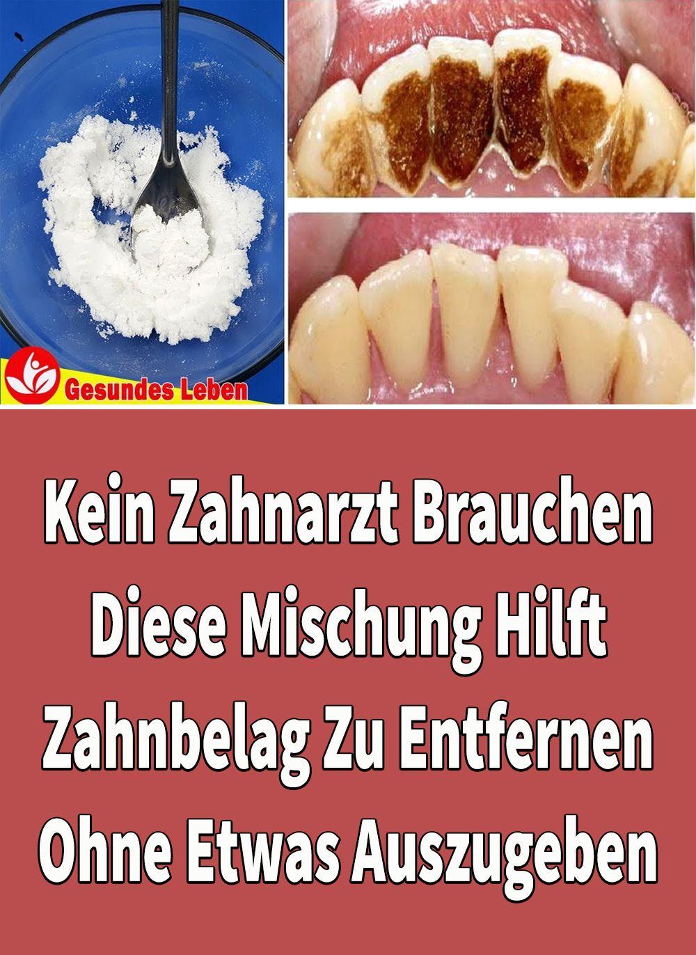 Kein Zahnarzt Brauchen: Diese Mischung Hilft Zahnbelag Zu Entfernen, Ohne Etwas Auszugeben