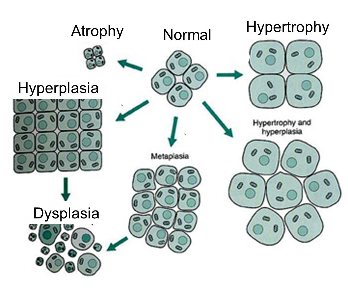 Cell Growth Comparison Atrophy Hypertrophy Metaplasia