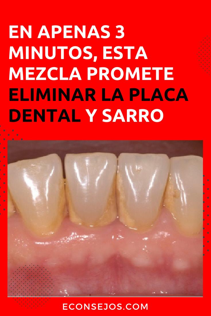 Enjuague La Boca Por 1 Minuto Con Esto Y Elimine El Sarro De Sus Dientes Productos De Higiene Bucal Eliminar Sarro Dientes Quitar Sarro Dientes