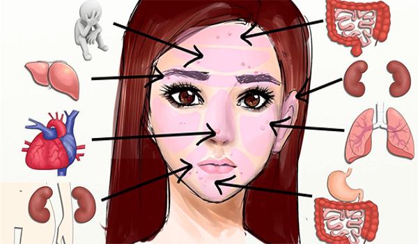 Αυτά τα σημάδια στο πρόσωπό σας υποδεικνύουν προβλήματα υγείας σε άλλα μέρη του σώματός σας  Αν έχετε δερματικά προβλήματα στο πρόσωπο, μ...