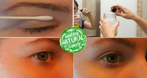 This Simple Remedy Will Help You Get Rid of Saggy Eyelids for Good-If you are struggling with saggy eyelids, then you must have gone through the frustrating process of applying make-up. The droopy eyelids make you look older, tired, and weary. This usually comes w…