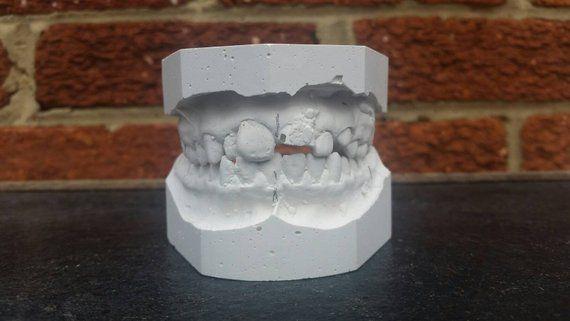 Plaster Tooth Mold // Medical Oddity // Dental Mold // Creepy Decor