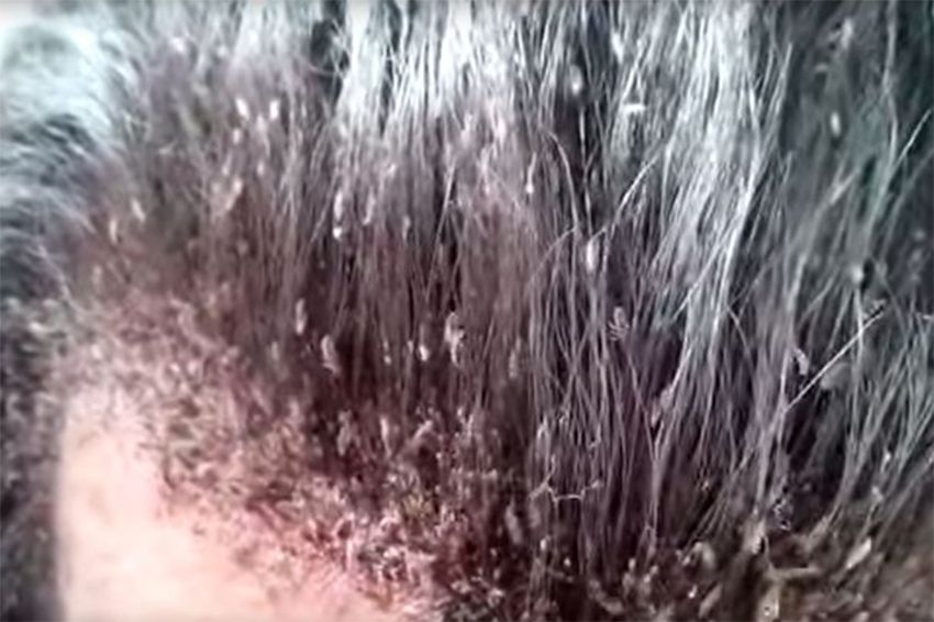 Man S Disgusting Head Lice Infestation Will Make Your Skin Crawl Lice Infestation Head Lice Infestation Head Louse